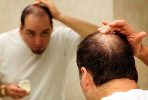 صورة علاج تساقط الشعر للرجال , علاج تساقط الشعر بطرق طبيعيه للرجال