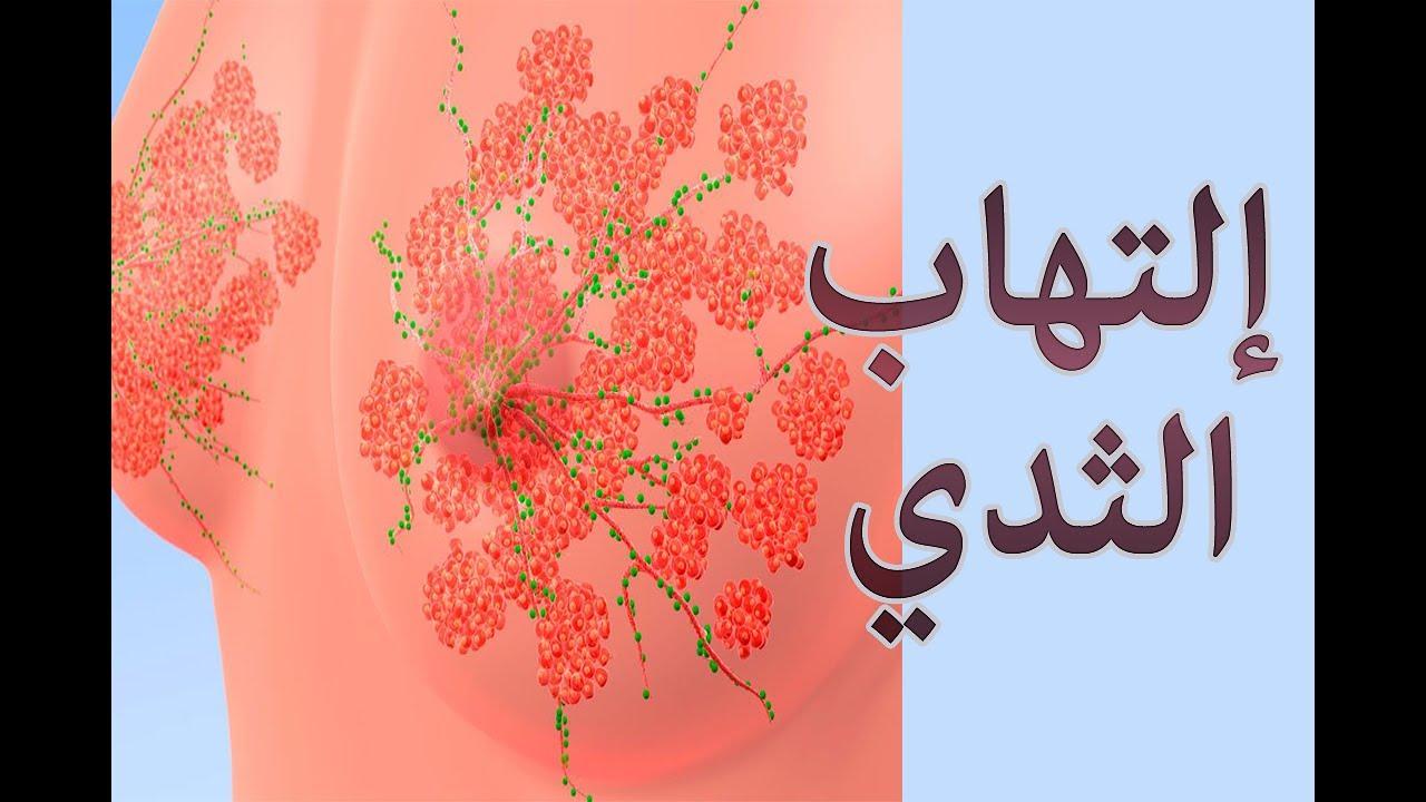 صوره التهاب الثدي , اعراض التهاب الثدى
