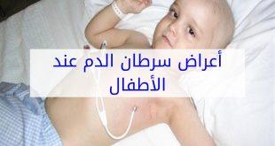 اعراض سرطان الدم , كيف تعرف انك مصاب بسرطان الدم