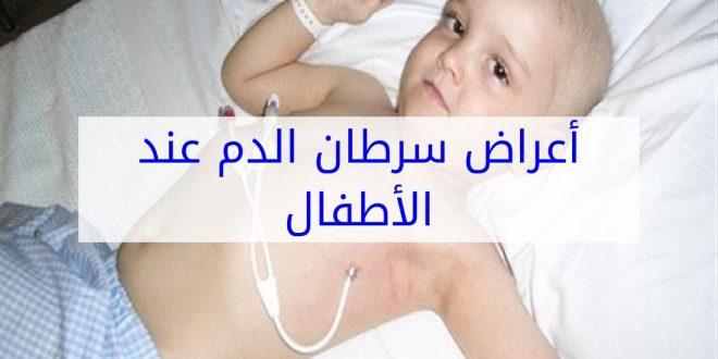 صور اعراض سرطان الدم , كيف تعرف انك مصاب بسرطان الدم