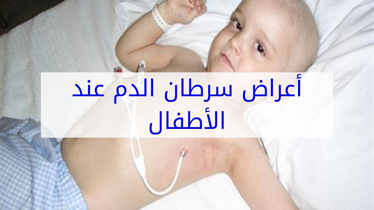 صورة اعراض سرطان الدم , كيف تعرف انك مصاب بسرطان الدم