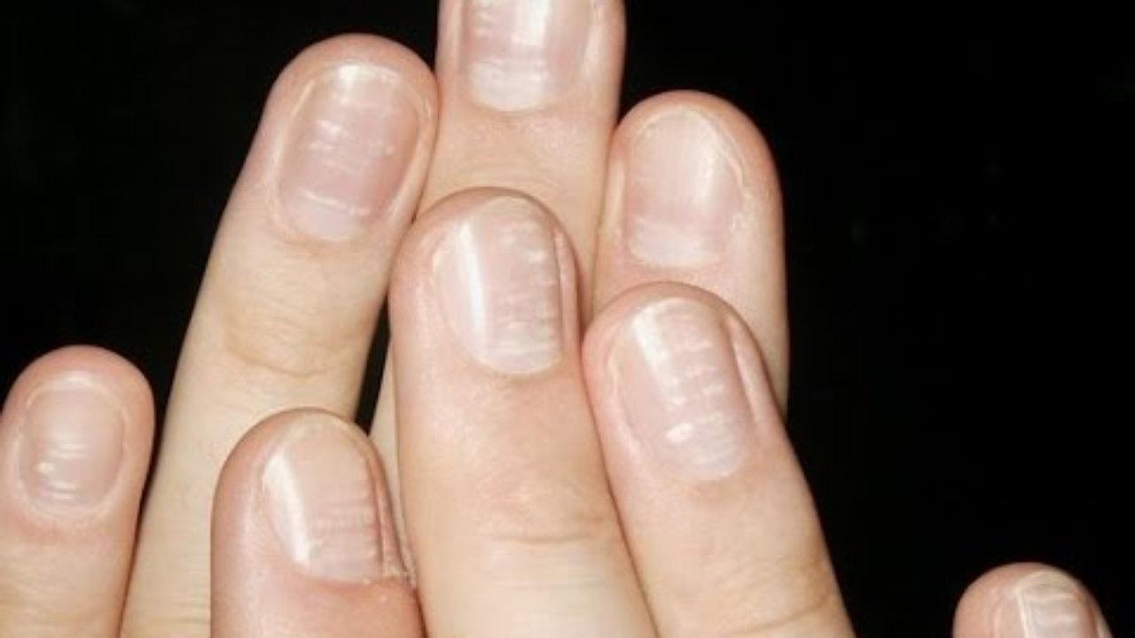 بالصور امراض الاظافر , ا مراض الاظافر الوقاية والعلاج 5643 1