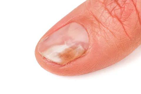 صورة امراض الاظافر , ا مراض الاظافر الوقاية والعلاج