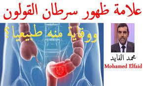 بالصور اعراض سرطان القولون , تعرف على خطورة سرطان القولون 1715 2
