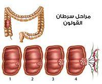 صورة اعراض سرطان القولون , تعرف على خطورة سرطان القولون