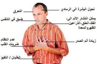 صورة اعراض امراض القلب , علاج مرض القلب بالاعشاب الطبيعية