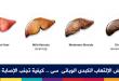 بالصور مرض الكبد الوبائي , اخطر امراض الكبد الوبائي 4268 1 110x75
