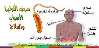 صورة مرض الكوليرا , اعراض وطرق علاج مرض الكوليرا