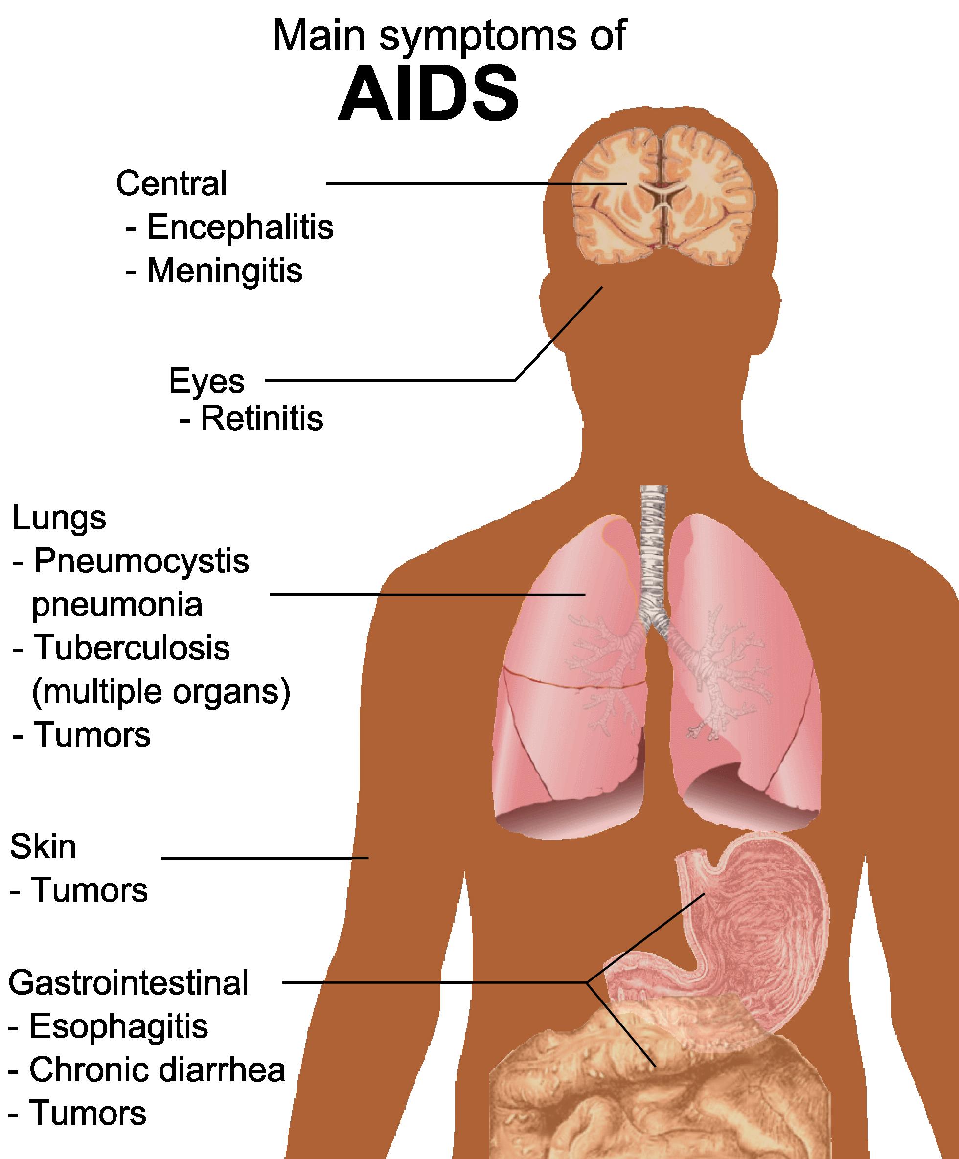 بالصور مرض الحصبة , اعراض الاصابه بمرض الحصبه 6271 1
