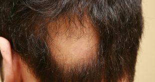 مرض الثعلبة , بعضا من المعلومات عن مرض الثعلبه