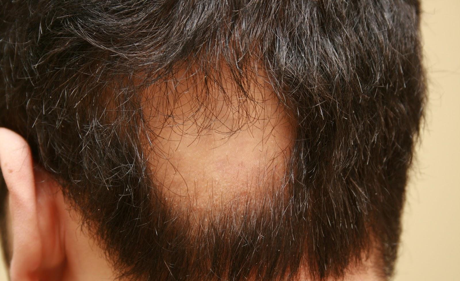 صوره مرض الثعلبة , بعضا من المعلومات عن مرض الثعلبه