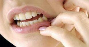 بالصور علاج وجع الاسنان , عالج الام اسنانك 2377 3 310x165