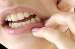 بالصور علاج وجع الاسنان , عالج الام اسنانك 2377 3 310x205