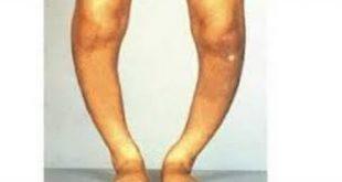 صوره مرض الكساح , افظع الامراض التى يمكن ان تصيب الانسان
