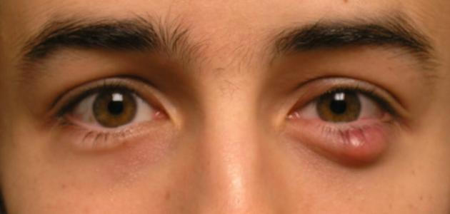 بالصور علاج الدمل , طريقه لعلاج الدمل 3582 3