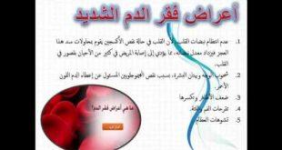 صوره اعراض فقر الدم , مرض فقر الدم ومدى الحماية منه