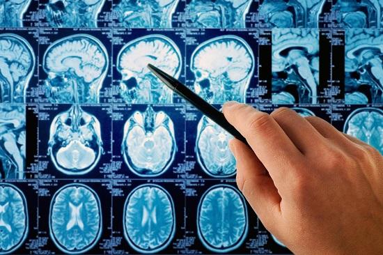 صوره اعراض سرطان الدماغ , كيفيه تجنب الاصابه بورم فى الدماغ