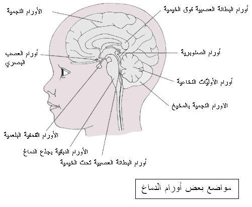 بالصور اعراض سرطان الدماغ , كيفيه تجنب الاصابه بورم فى الدماغ 6289 2