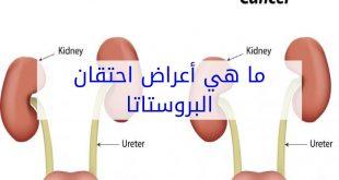 اعراض البروستاتا , اسباب الاصابه بمرض البروستاتا