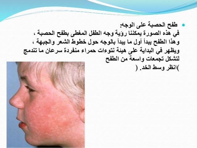 بالصور مرض الحصبة , اعراض الاصابه بمرض الحصبه 6308 2