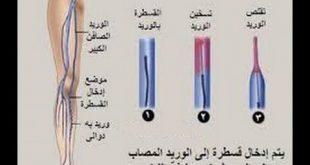 بالصور علاج الدوالي , كيفيه الاصابه والعلاج من مرض الدوالى 6374 3 310x165
