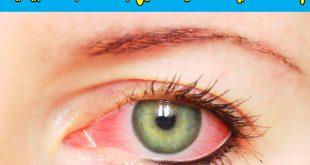 صوره علاج حساسية العين , كيفيه التخلص من حساسيه العين