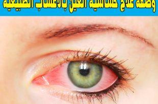 بالصور علاج حساسية العين , كيفيه التخلص من حساسيه العين 6391 3 310x205