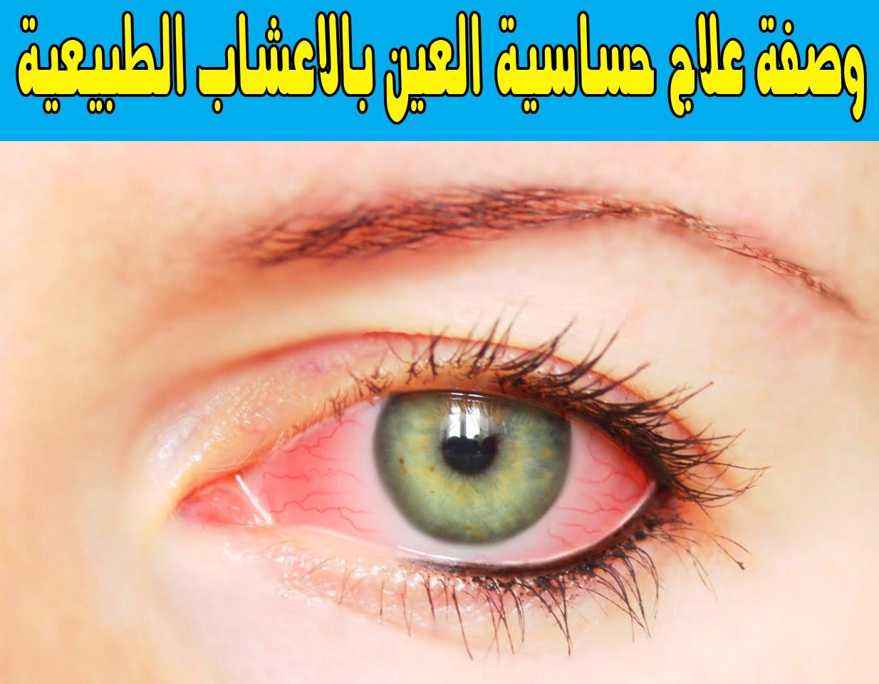 صورة علاج حساسية العين , كيفيه التخلص من حساسيه العين