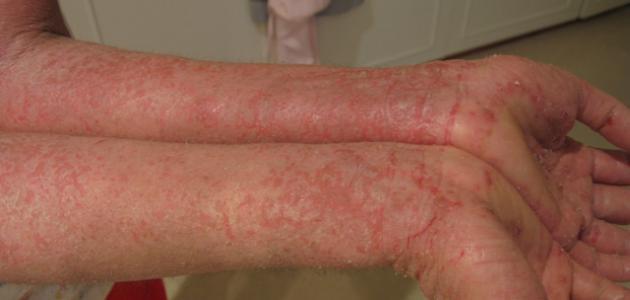 صورة علاج حساسية اليدين , افضل علاج لحساسيه اليدين