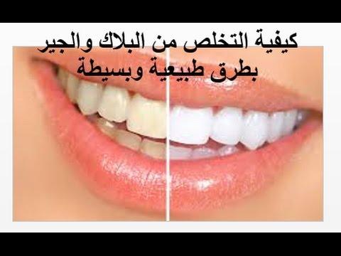 صور ازالة الكالكير من الاسنان , طريقه سهله لازاله الكالكير من الاسنان
