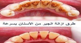 بالصور ازالة الكالكير من الاسنان , طريقه سهله لازاله الكالكير من الاسنان 12573 2 310x165