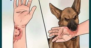 بالصور علاج عضة الكلب , ما هو العالج اللازم لعضه الكلب 12701 2 310x165