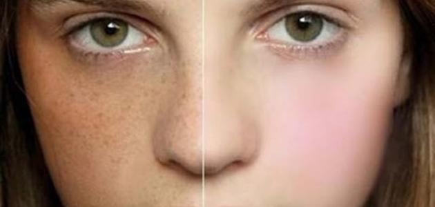 صور ازالة الكلف من الوجه , طريقه سهله لازاله الكلف