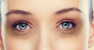 صورة اسمرار تحت العين , ما اسباب الاسمرار تحت العين