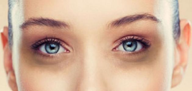 صور اسمرار تحت العين , ما اسباب الاسمرار تحت العين