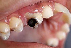 صورة تفسير تسوس الاسنان في الحلم , ما تفسير رؤيا تسوس الاسنان