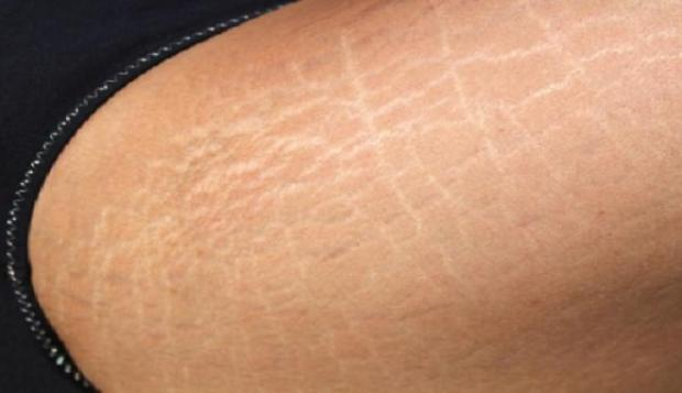 بالصور التخلص من السيلوليت في الافخاذ , معلومات عن السلوليت 12785 1