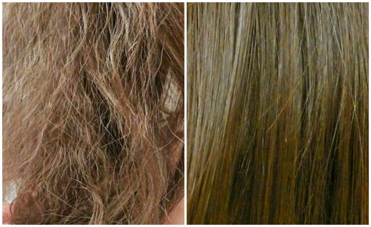 صورة علاج للشعر التالف , مشكلات الشعر وطرق العلاج