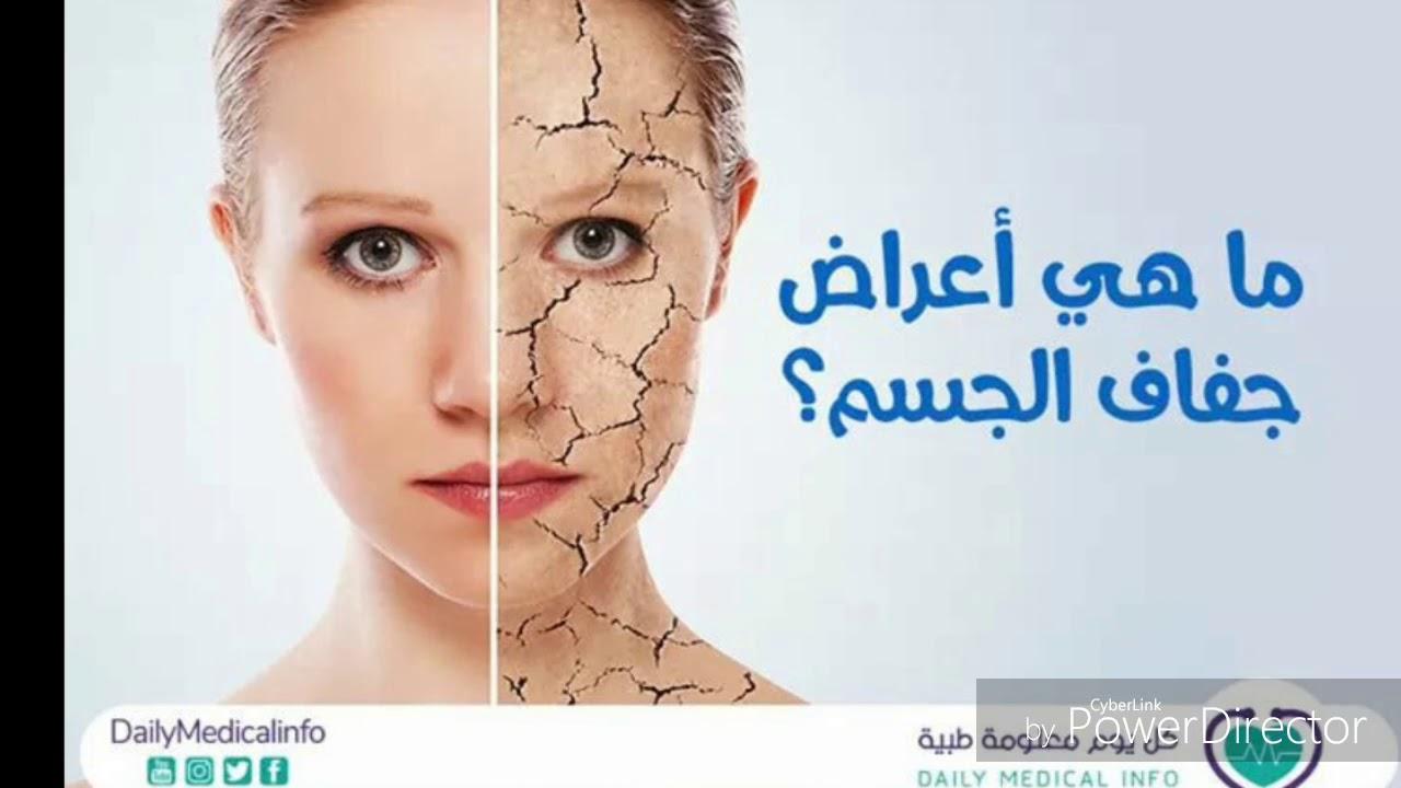 بالصور اعراض الجفاف عند الكبار , الجفاف وضراره بصحه الانسان 12951 2