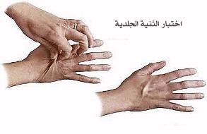 صور اعراض الجفاف عند الكبار , الجفاف وضراره بصحه الانسان
