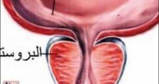 صور مرض البروستات , تعرف على اسباب مرض البروستات