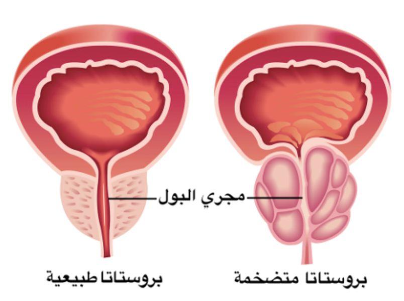 بالصور مرض البروستات , تعرف على اسباب مرض البروستات 65