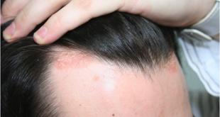 بالصور مرض الصدفية , تعرف على الصدفية اسبابها وعلاجها 6739 1 310x165