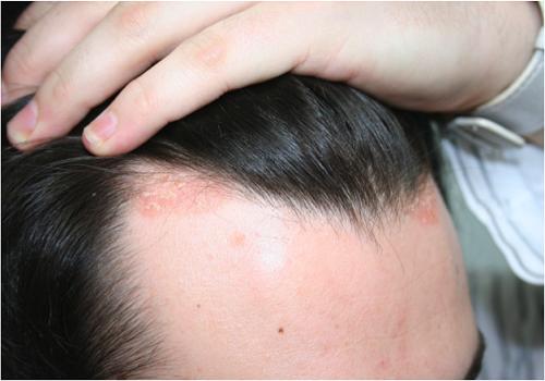 صورة مرض الصدفية , تعرف على الصدفية اسبابها وعلاجها