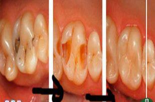 صورة علاج تسوس الاسنان , طرق فعالة لمشاكل الاسنان