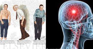 صورة مرض باركنسون , اعراض مرض باركنسون