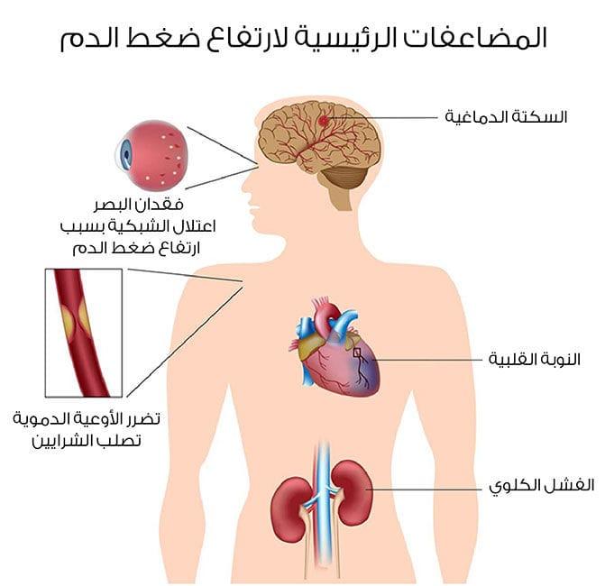 صورة اعراض ارتفاع ضغط الدم 5097 2