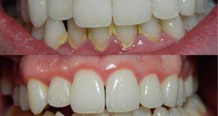 صورة الم اللثة والاسنان  , إلتهاب وألم اللثة يؤدى إلى تساقط الأسنان 11931 3 310x165