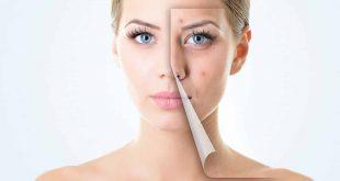 صورة طريقة ازالة الحبوب من الوجه في يوم واحد  , مشكلة حبوب الوجه وحلها فى يوم واحد فقط 12029 3 310x165