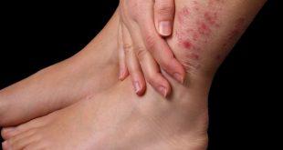 صورة اعراض التهاب الدم  , أسباب إلتهاب الدم أو تعفن الدم وأعراضه 12317 2 310x165